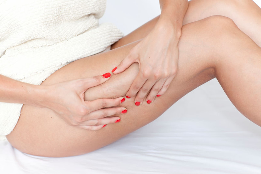 woman-checking-her-legs-for-cellulite-